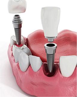implante_unitario_dentista_pulianas_financiacion_granada_fuente_grande_nivar_dental_clinica